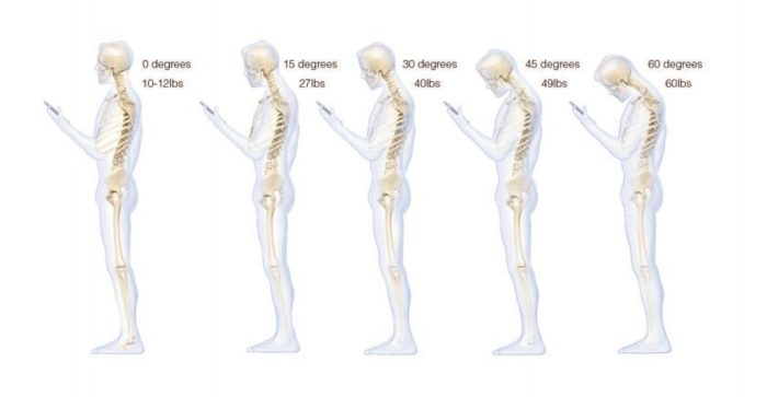 guardare-cellulare-telefonino-smartphone-fa-male-alla-schiena