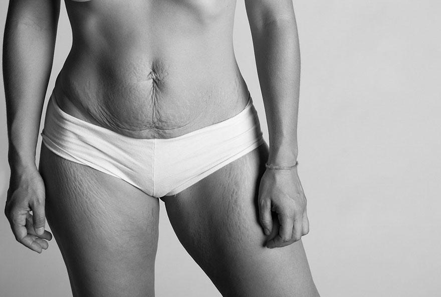 Molto Serie fotografica sulla post gravidanza mostra come cambia il  DS59