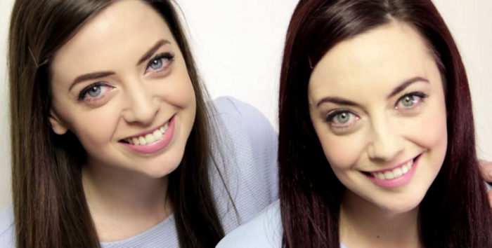 gemelle-sosia-ragazze-irlanda-Niamh-karen