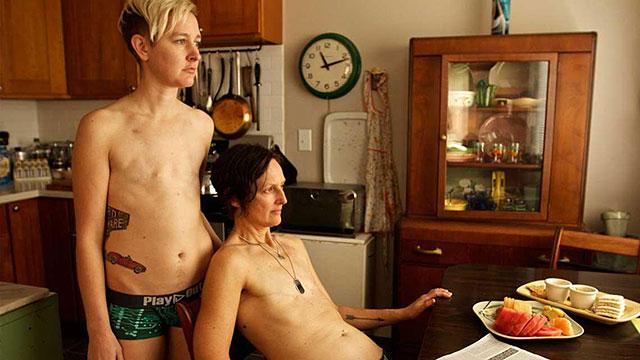 mastectomia-bilaterale-cancro-donne-sopravvissute-lgtb-flattoppers-3