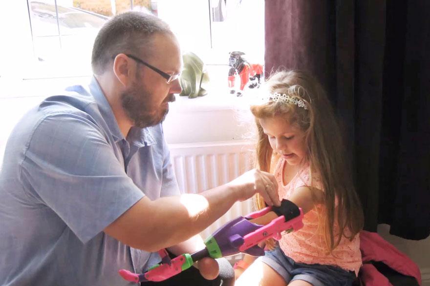 bambina-disabile-protesi-braccio-stampa-3d-stephen-davies-isabella-1