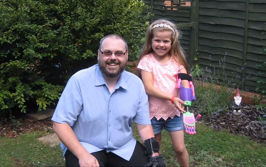 bambina-disabile-protesi-braccio-stampa-3d-stephen-davies-isabella-4