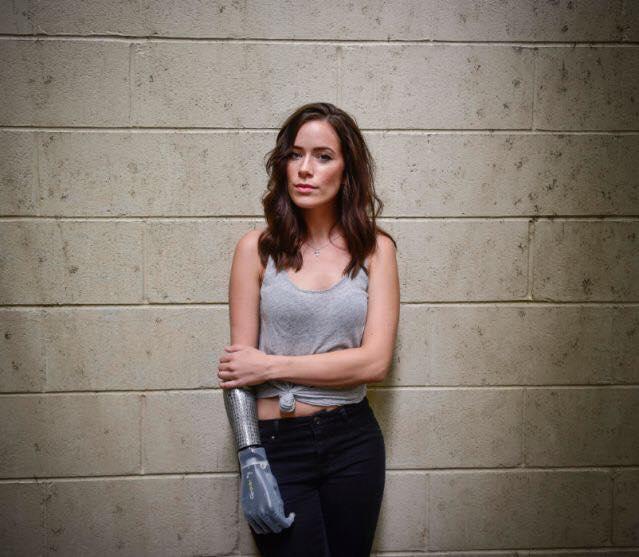modella-disabile-protesi-braccio-bionico-rebekah-marine-15
