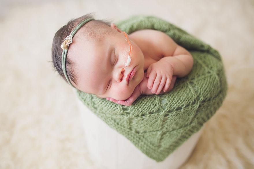 neonata-malata-terminale-tumore-cervello-cancro-sindrome-down-foto-di-famiglia-07