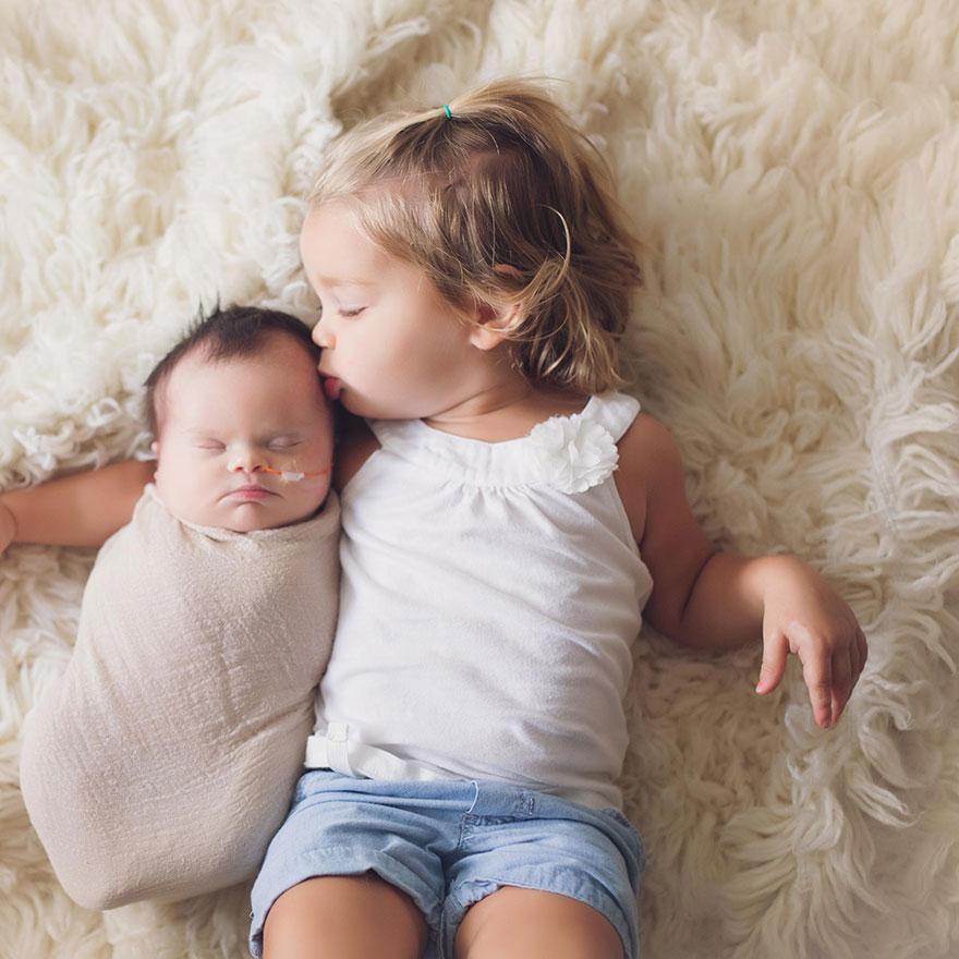 neonata-malata-terminale-tumore-cervello-cancro-sindrome-down-foto-di-famiglia-15