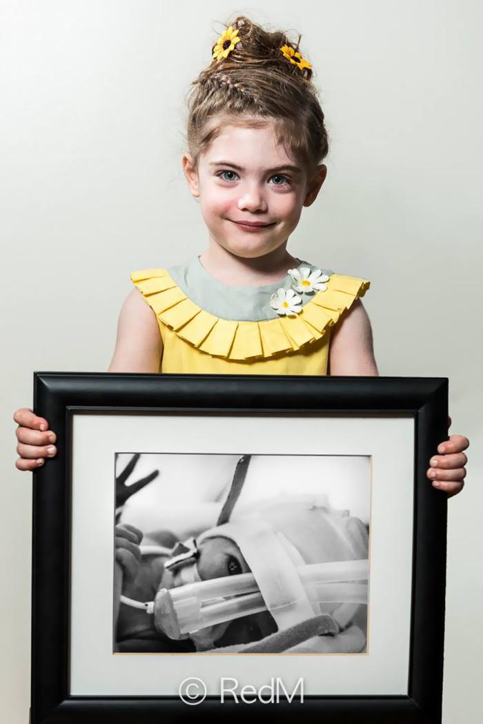 ritratti-prima-dopo-bambini-prematuri-diventati-adulti-red-methot-03