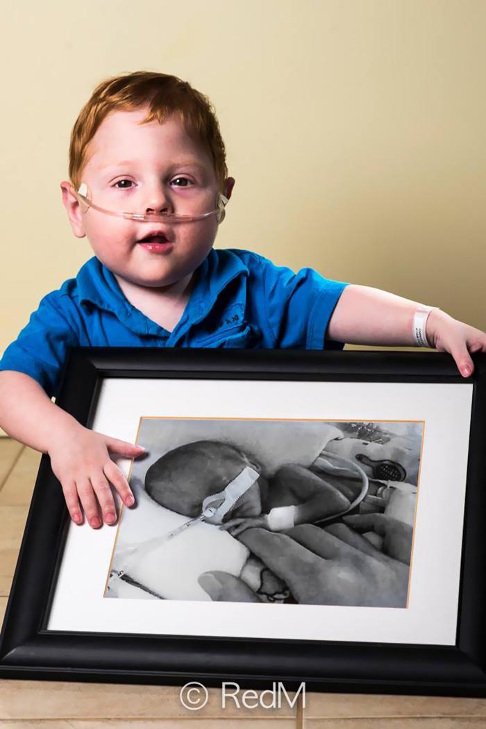 ritratti-prima-dopo-bambini-prematuri-diventati-adulti-red-methot-05