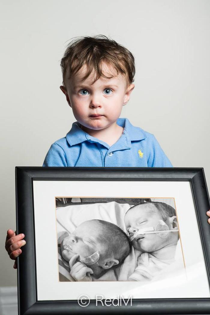 ritratti-prima-dopo-bambini-prematuri-diventati-adulti-red-methot-06