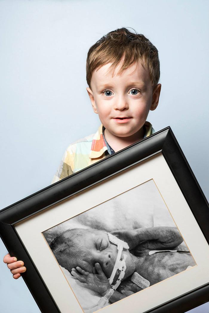 ritratti-prima-dopo-bambini-prematuri-diventati-adulti-red-methot-08