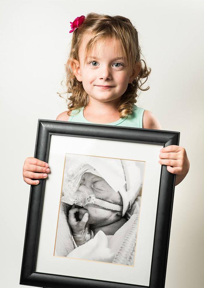 ritratti-prima-dopo-bambini-prematuri-diventati-adulti-red-methot-11