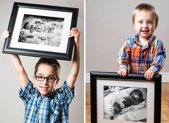 ritratti-prima-dopo-bambini-prematuri-diventati-adulti-red-methot-12