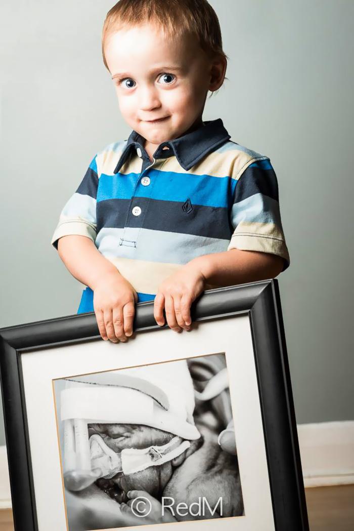 ritratti-prima-dopo-bambini-prematuri-diventati-adulti-red-methot-13
