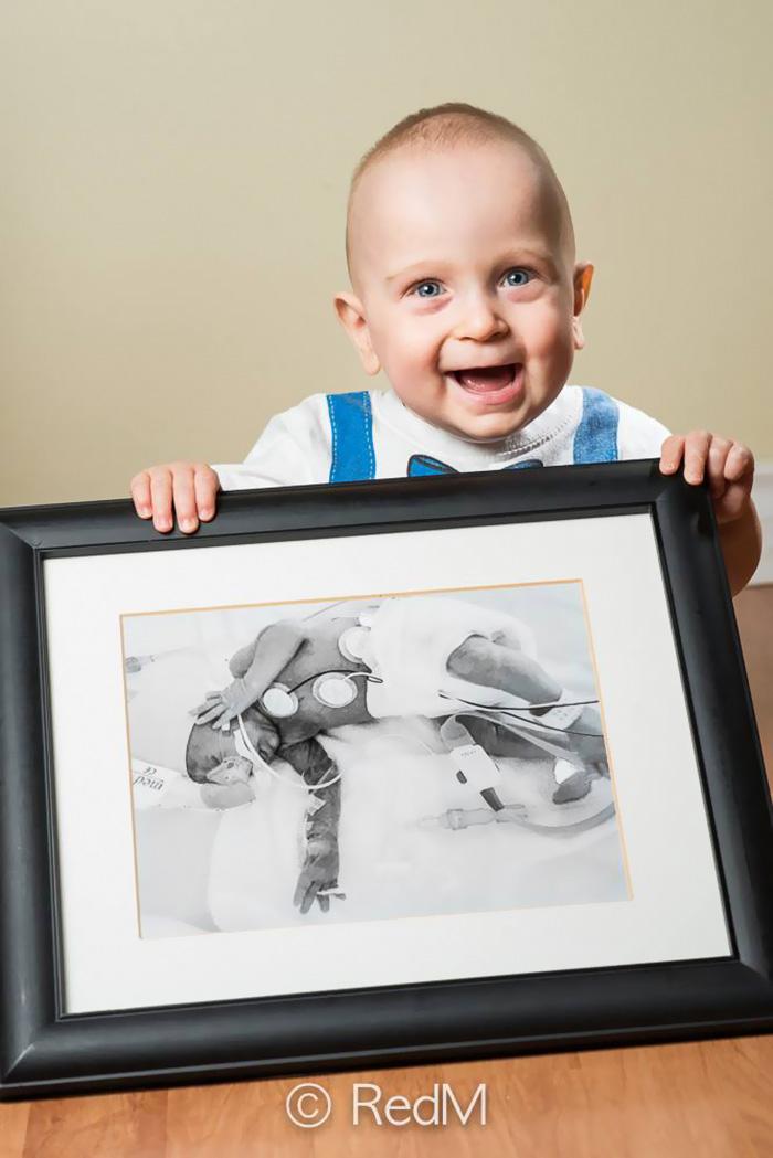 ritratti-prima-dopo-bambini-prematuri-diventati-adulti-red-methot-14