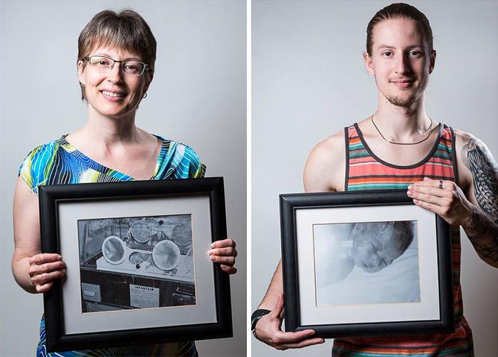 ritratti-prima-dopo-bambini-prematuri-diventati-adulti-red-methot-15