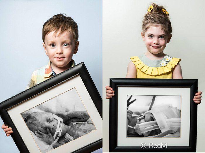 Potenti ritratti del prima e del dopo di neonati prematuri c83a1a6049c7