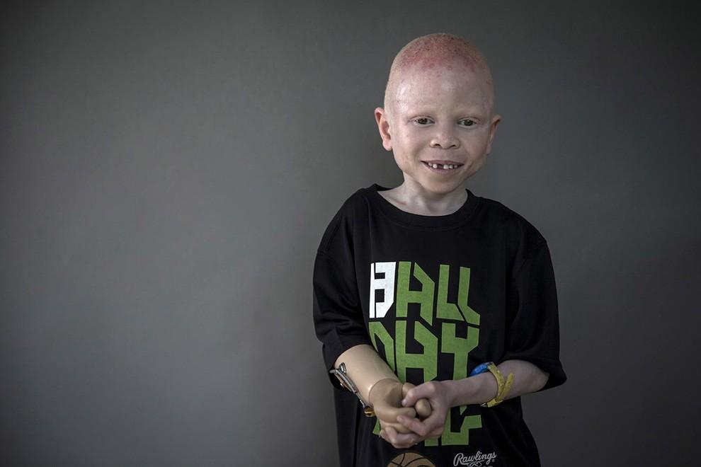 albini-africa-tanzania-persecuzioni-03