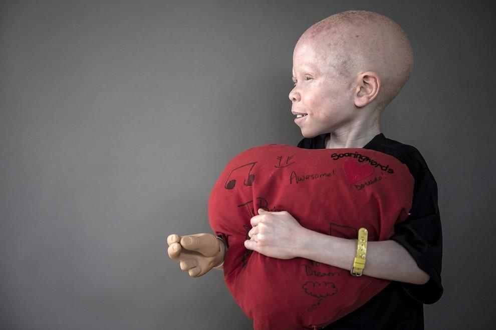 albini-africa-tanzania-persecuzioni-08