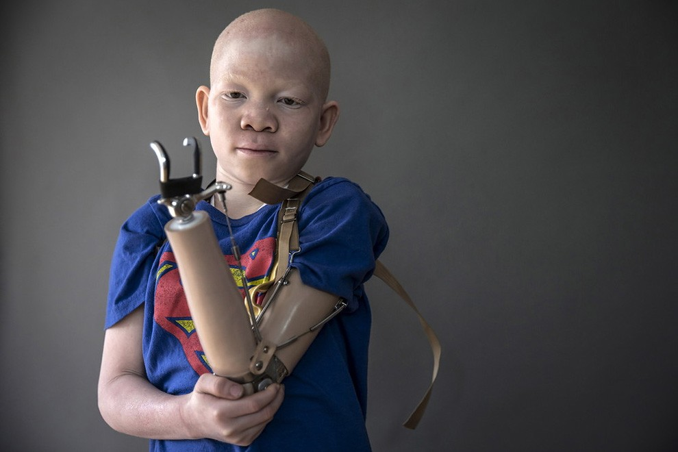 albini-africa-tanzania-persecuzioni-12