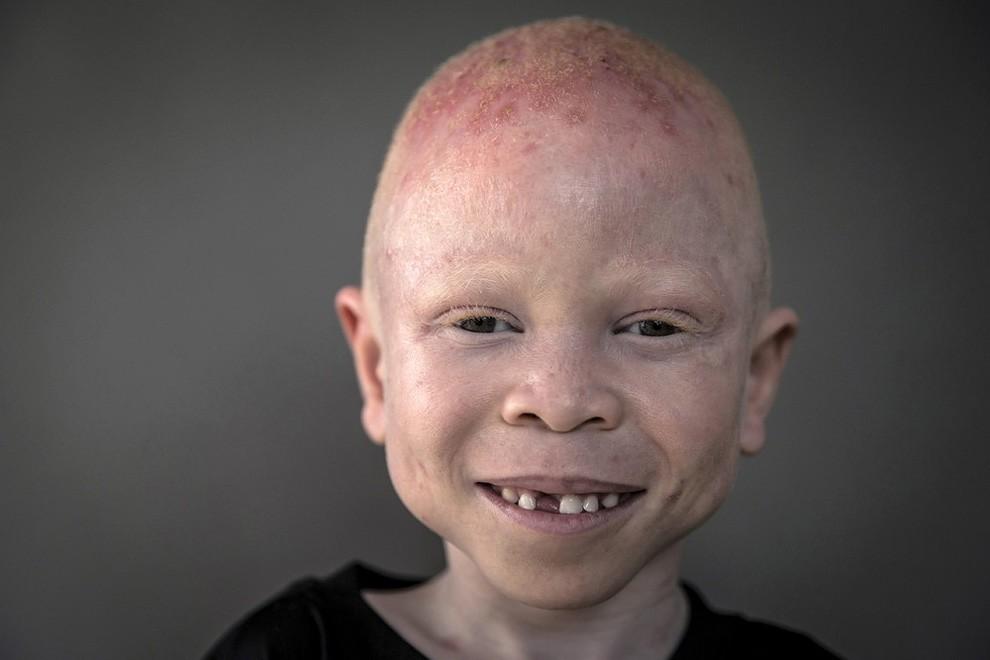 albini-africa-tanzania-persecuzioni-13