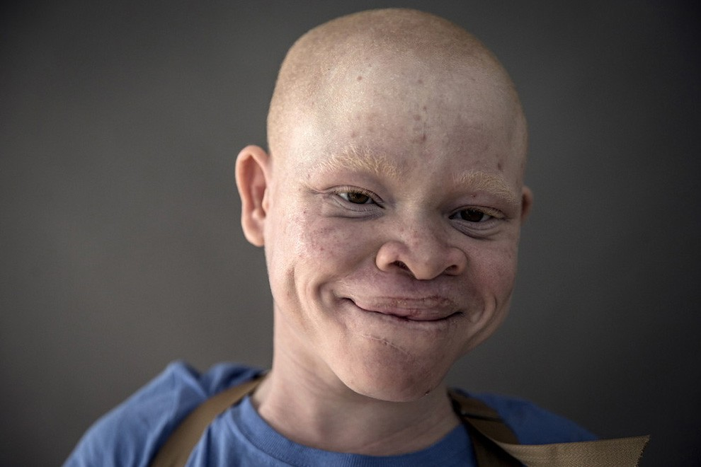 albini-africa-tanzania-persecuzioni-16