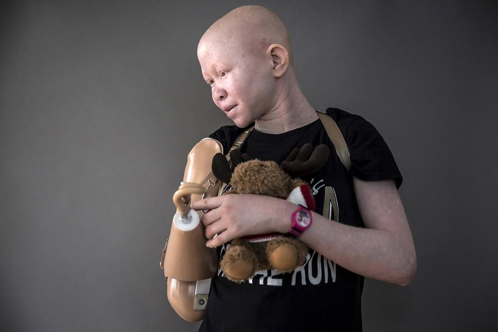 albini-africa-tanzania-persecuzioni-17