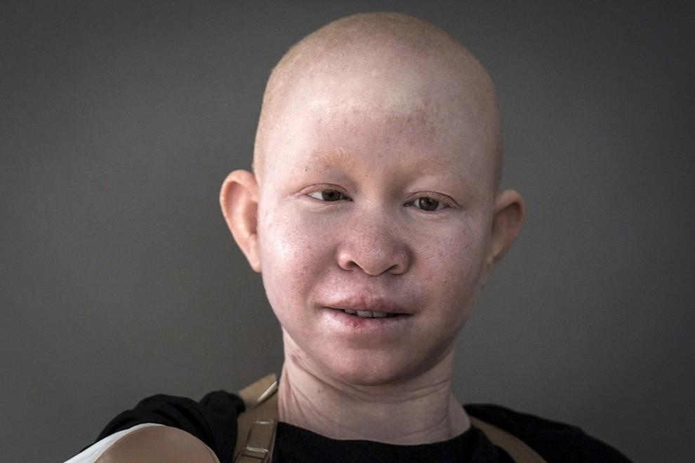 albini-africa-tanzania-persecuzioni-19