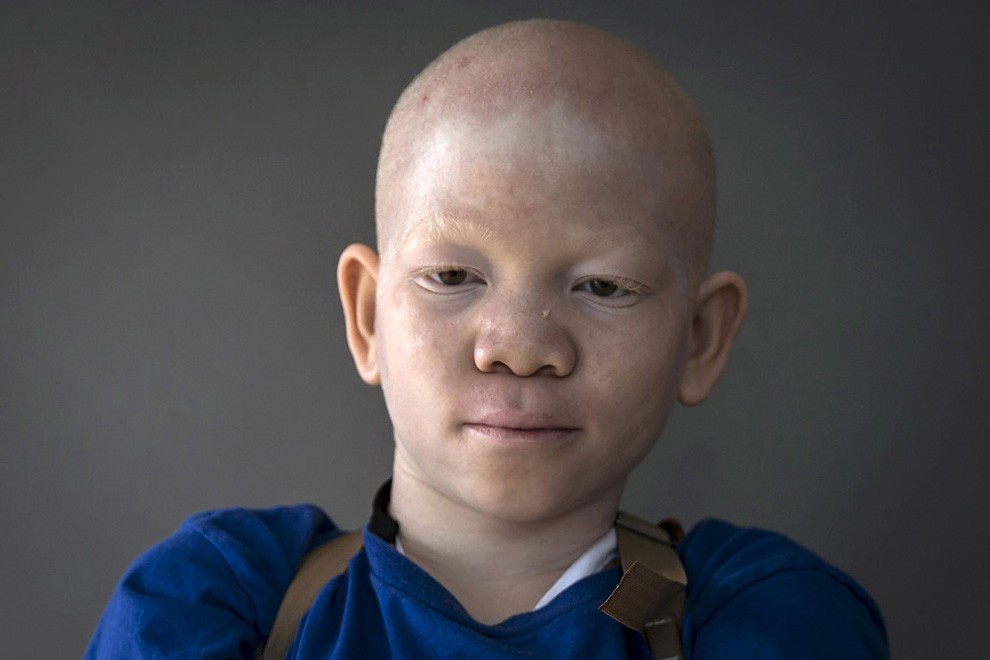 albini-africa-tanzania-persecuzioni-21