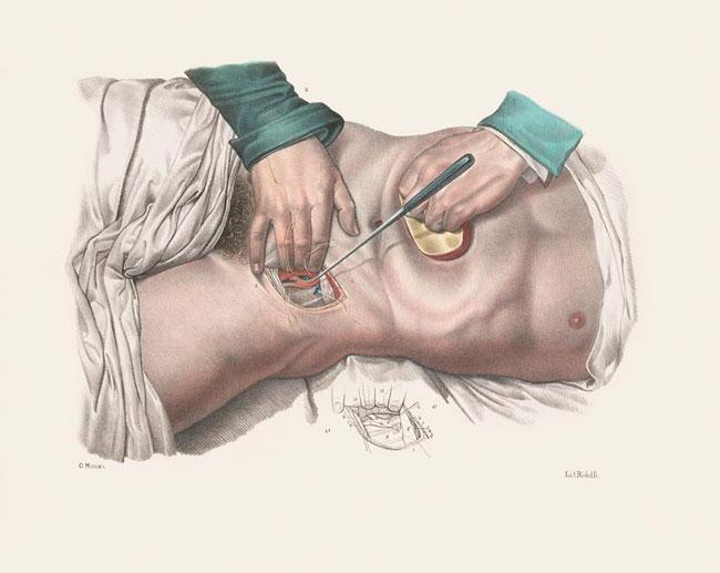 illustrazioni-vintage-800-medicina-chirurgia-richard-barnett-01