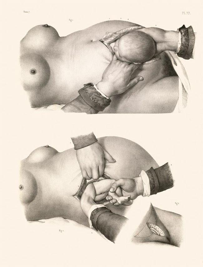 illustrazioni-vintage-800-medicina-chirurgia-richard-barnett-04