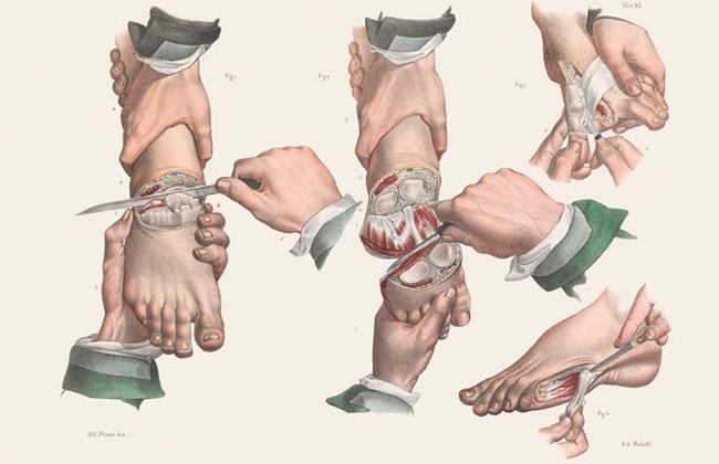 illustrazioni-vintage-800-medicina-chirurgia-richard-barnett-10