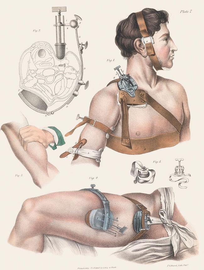 illustrazioni-vintage-800-medicina-chirurgia-richard-barnett-13