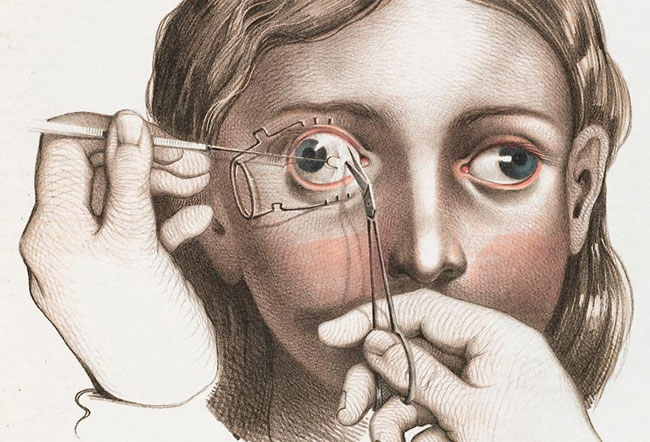 illustrazioni-vintage-800-medicina-chirurgia-richard-barnett-16