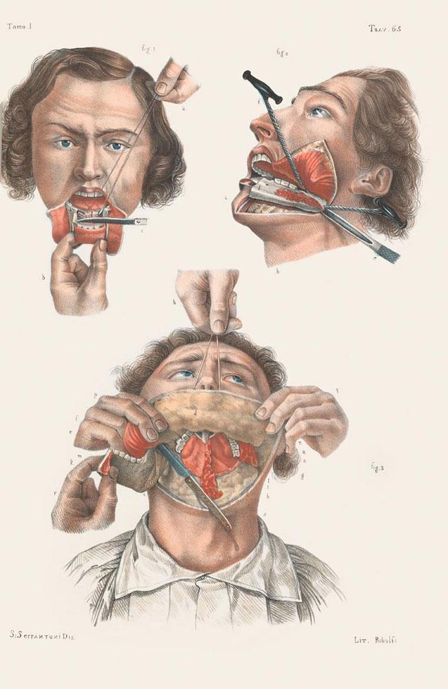 illustrazioni-vintage-800-medicina-chirurgia-richard-barnett-22