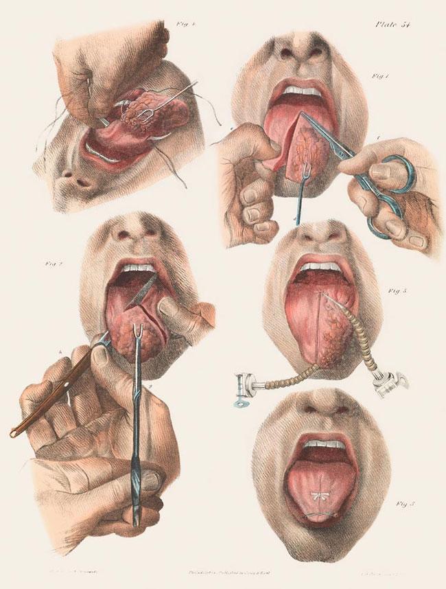 illustrazioni-vintage-800-medicina-chirurgia-richard-barnett-25