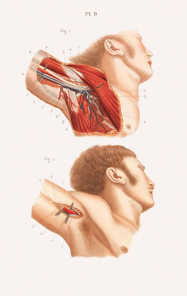 illustrazioni-vintage-800-medicina-chirurgia-richard-barnett-31
