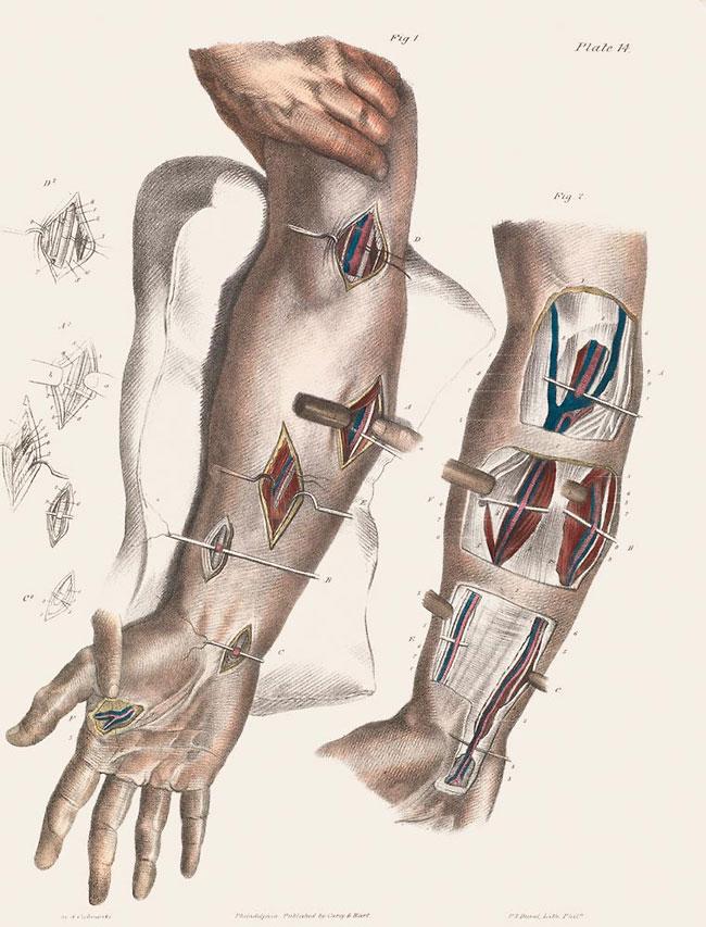illustrazioni-vintage-800-medicina-chirurgia-richard-barnett-37