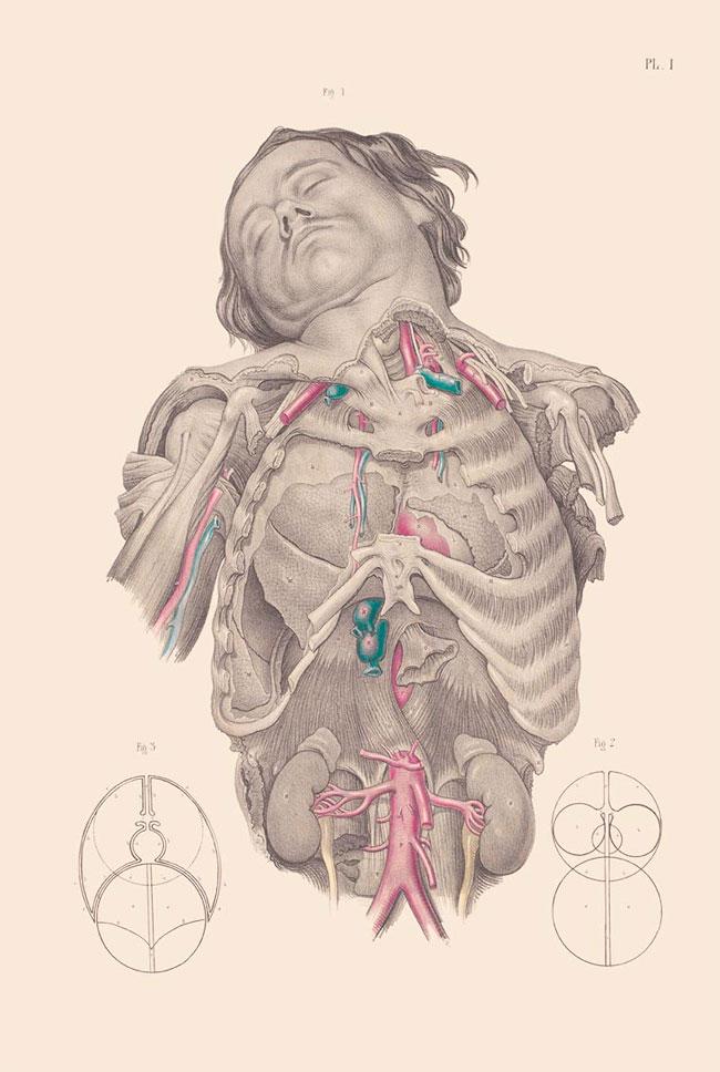 illustrazioni-vintage-800-medicina-chirurgia-richard-barnett-40