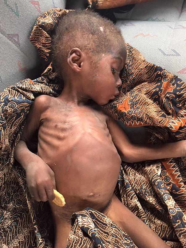 bambino-nigeriano-affamato-assetato-hope-soccorso-anja-ringgren-04