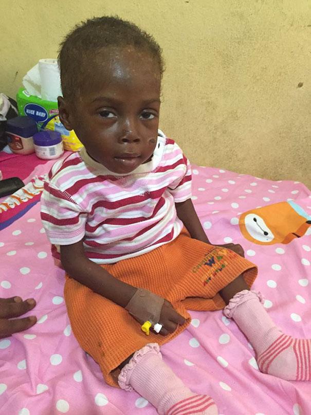 bambino-nigeriano-affamato-assetato-hope-soccorso-anja-ringgren-06