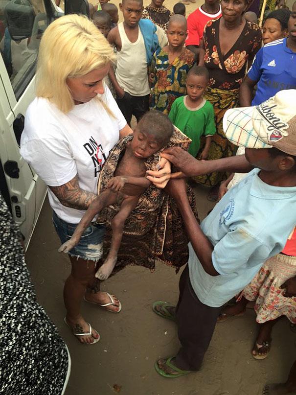 bambino-nigeriano-affamato-assetato-hope-soccorso-anja-ringgren-09