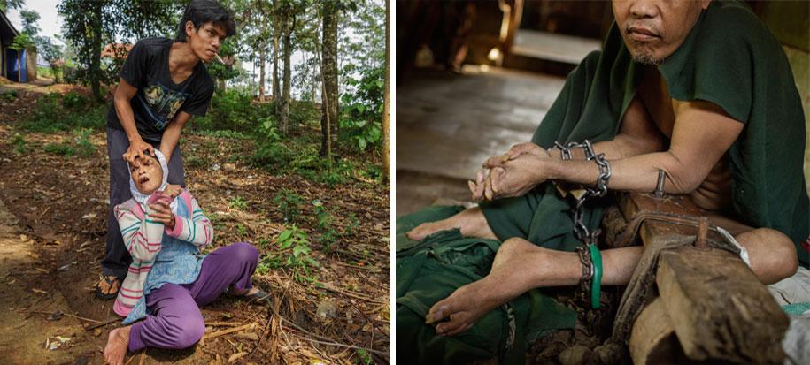 foto-scioccanti-malati-mentali-indonesia-andrea-star-reese-10