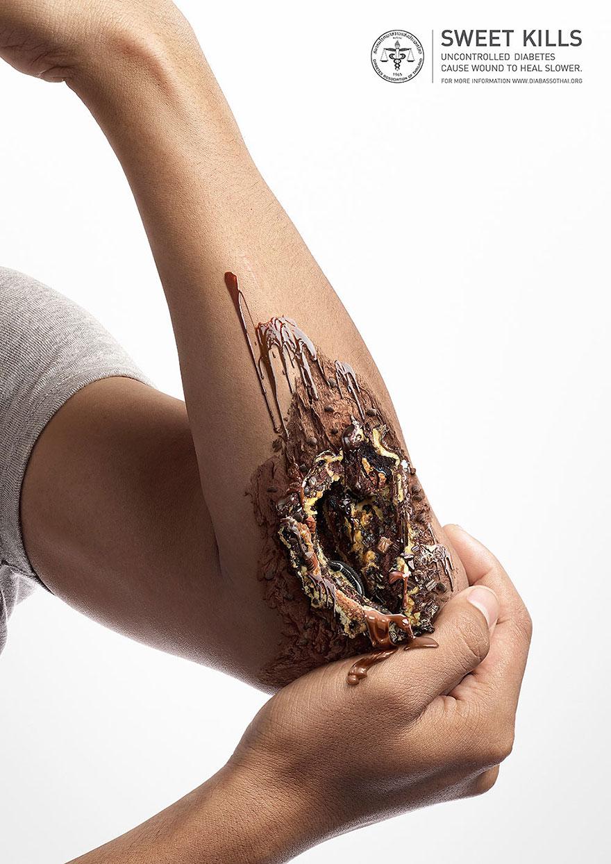 zucchero-diabete-pubblicita-lesioni-salute-3