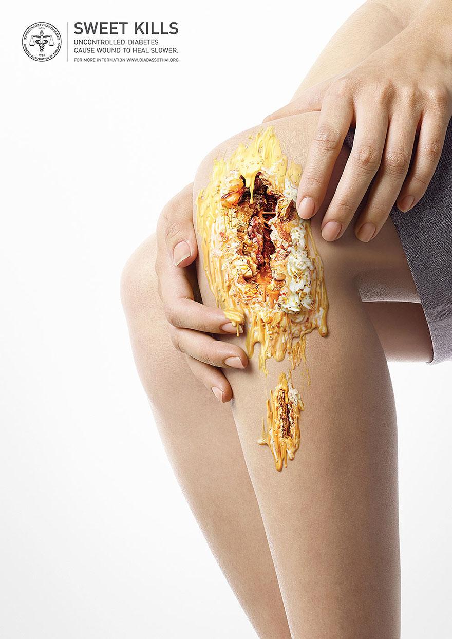 zucchero-diabete-pubblicita-lesioni-salute-6