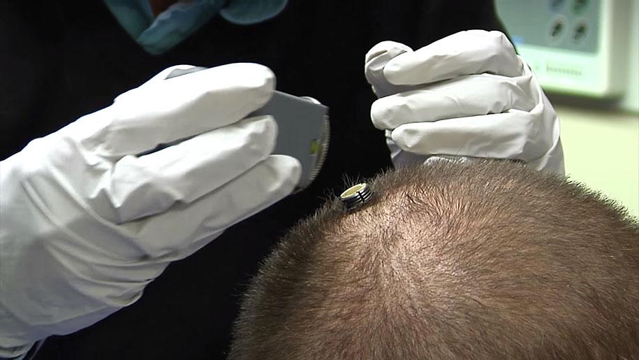 uomo-paralizzato-muove-mano-scoperta-scientifica-chip-cerebrale-elettroimpulsi-6