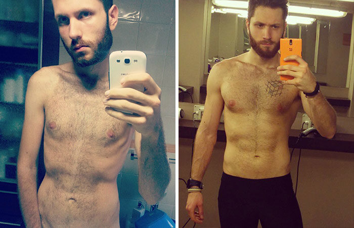 Anoressia immagini prima e dopo guarigione