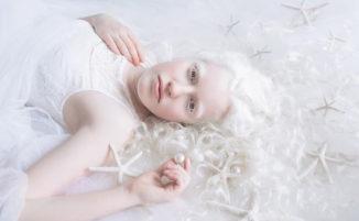 Fotografa cattura la bellezza angelica di persone albine
