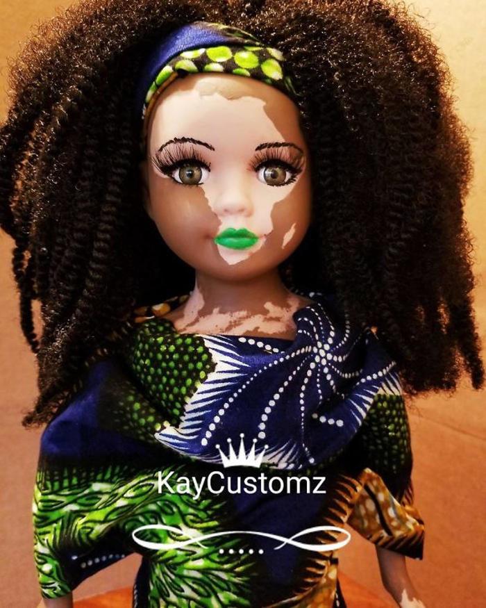 Artista crea bambole con vitiligine per bambine con questa malattia