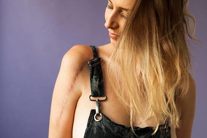 Foto Di Persone Con Cicatrici Sophie Mayenne