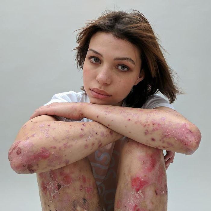 Mettono in mostra le loro cicatrici e raccontano le dolorose storie che nascondono