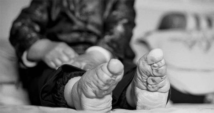 Uno sguardo dietro l'inquietante tecnica dei piedi fasciati delle donne cinesi
